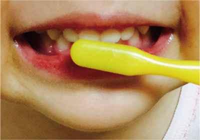 歯ブラシ塗布法