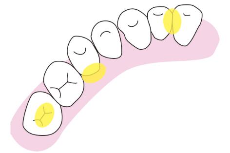 歯垢のたまりやすい場所