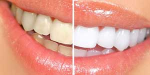 削って被せることなく、歯を白くする